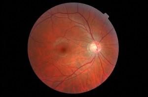 Digital Retina
