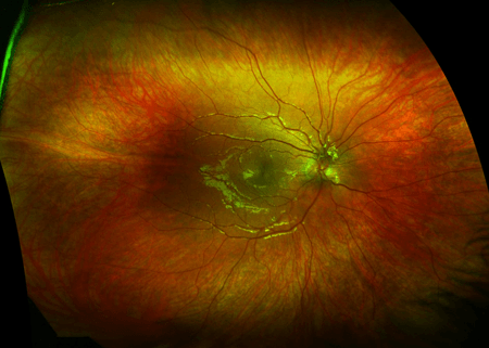 Optomap Eye Scan