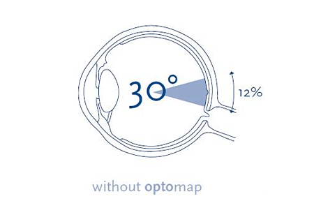 Optomap Eye Examinations