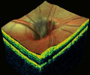3D Retinal scan