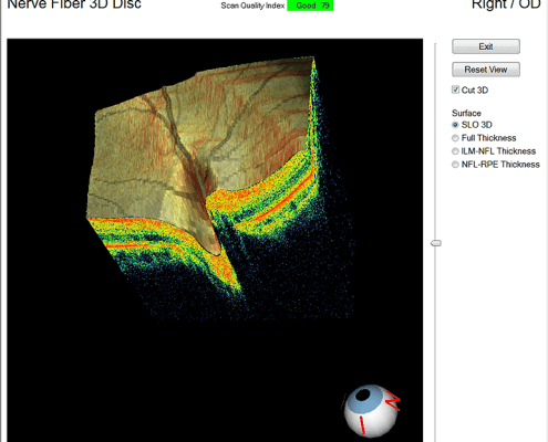 OCT 3D scan of the eye