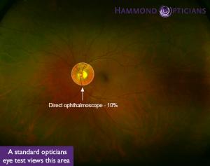 Optomap Retinal Scan