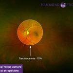 Optomap Retinal Scans